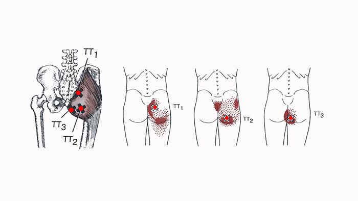 локализация триггерных точек в малой ягодичной мышце